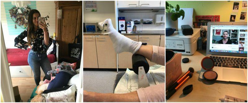 DIARY week 36 | Een gebroken voet